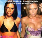 victoria-beckham-breast-implants-3