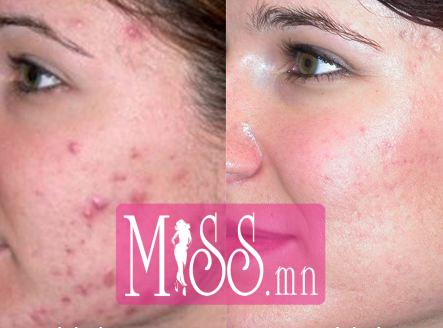 How-to-Get-Rid-of-Acne-Scars-Before-and-After-Looks